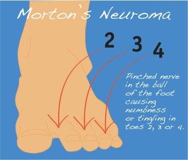 Mortons Neuroma 1