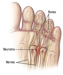 Mortons Neuroma 2